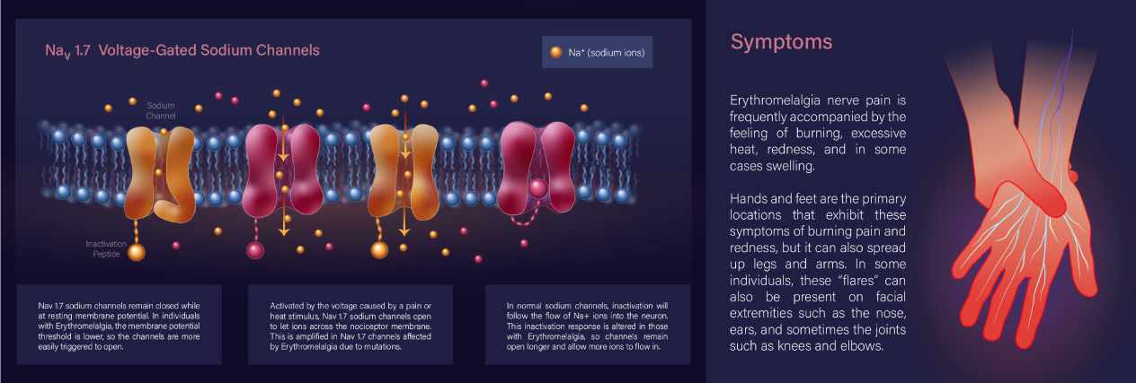 Educational poster with scientific illustrations depicting a medical condition called Erythromelalgia